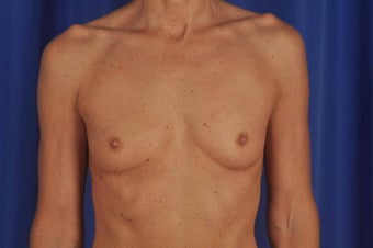 Breast Augmentation before 619488