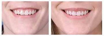 Alloderm facial implants for lip augmentation before 6771