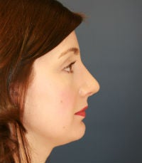 Rhinoplasty (nose reshaping) after 272586