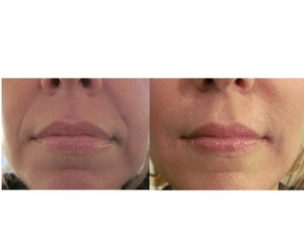 Juvederm Ultra XC & Ultra Plus XC before 359465