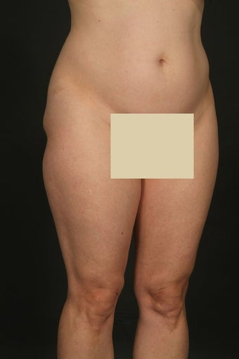 Tummy tuck with hip liposuction before 163042