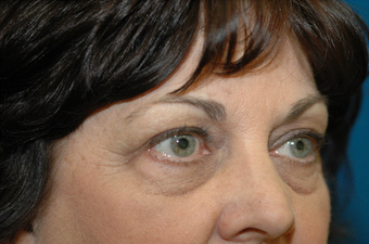 Lower blepharoplasty and fat grafting 524914