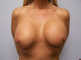 Very large breast implants before 591053