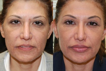 Non-Surgical Facial Rejuvenation with Silikon-1000: eyelids, lips, cheeks, acne scarring, nasolabial folds. 3 treatments.
