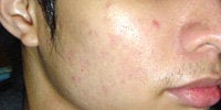 Acne Treatment with Smoothbeam before 271996