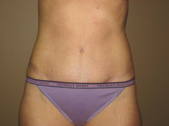 Tummy tuck after 572712