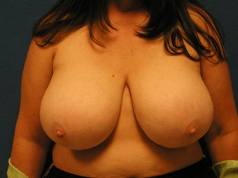 Breast Reduction before 475931