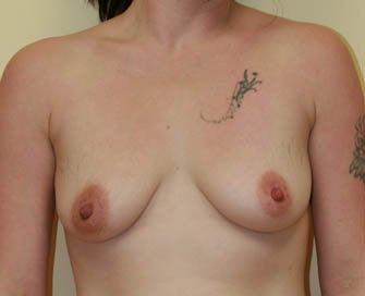 Breast Augmentation & Scarless Breast Lift before 226468