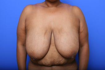 Breast Reduction before 621933