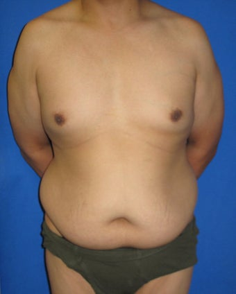 Tummy Tuck before 590040