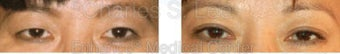Blepharoplasty before 427717