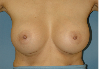Bilateral Breast Augmentation after 520949