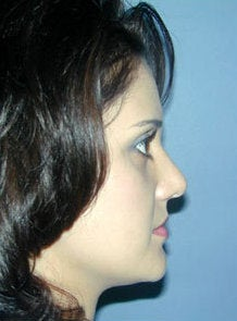 Nose Surgery, Rhinoplasty 550008