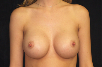 Breast Augmentation after 335974