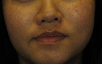 Laser Peels and More Perfect for Ethnic Skin Tones before 628494