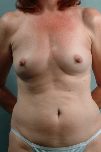 Breast Augmentation  before 240360