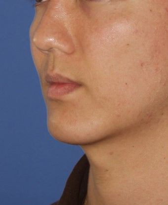 Chin Implant after 414146