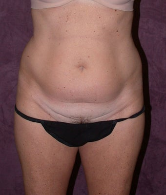 Tummy tuck (abdominoplasty) with liposuction of hips before 94646