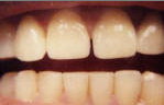 Porcelain Veneers after 535256