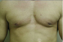 Male Breast Reduction after 141526