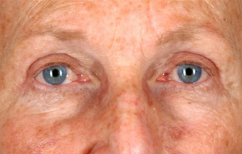 Upper Lid Blepharoplasty after 555133