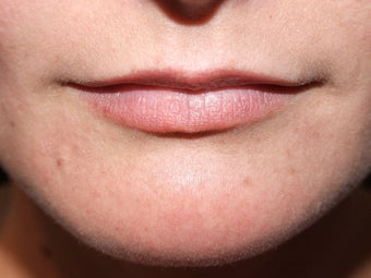 Lip augmentation before 111554