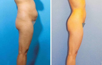Liposuction before 504997