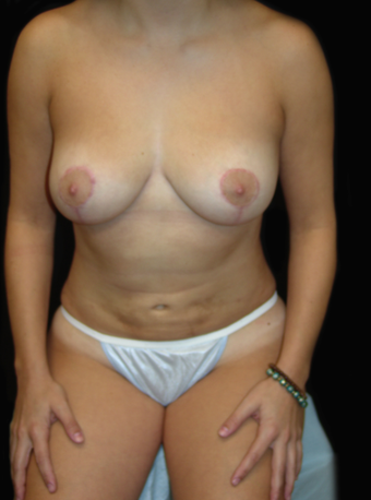 Breast Lift and Tummy Liposuction after 230740