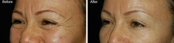 Botox for Crows Feet  before 97876