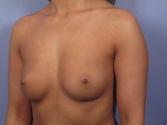 Breast Augmentation  before 338702