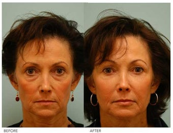 Fat Transfer/Fat Grafting/Facial Rejuvenation before 136344