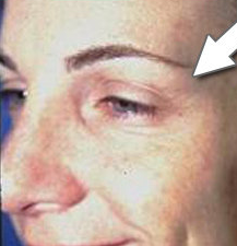Botox Cosmetic - Crow's Feet after 328095