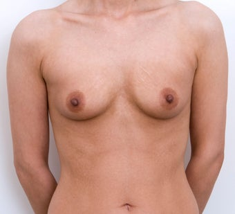 Breast Augmentation before 321330
