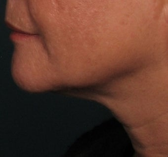 Ulthera Laser Skin Tightening after 346279