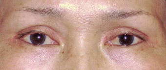 Upper Blepharoplasty after 365451