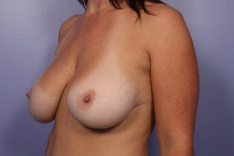 Breast Augmentation  after 307918