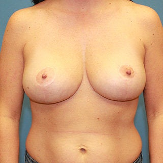 Breast reduction after 375033
