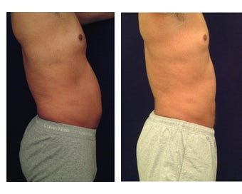Liposuction before 286850