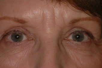 Bilateral Eyelid Lift and Blepharoplasty after 313336