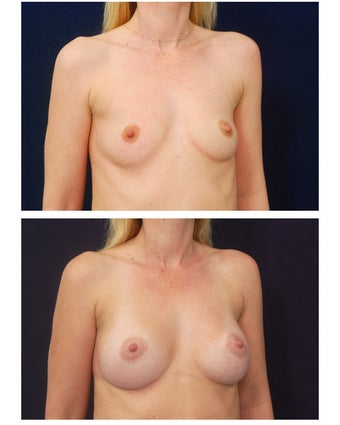 Breast Augmentation before 149592