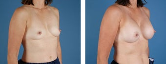 Breast Augmentation after 349398