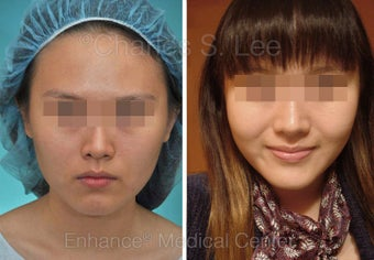 Chin Augmentation, Cheek, Jaw before 431283