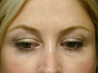 Botox Cosmetic after 375187