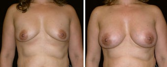 39 year old female, breast augmentation before 628378