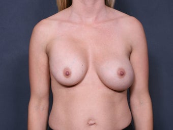 Breast Implant Revision before 461868