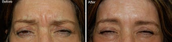 Botox treatment for brow wrinkles before 97863