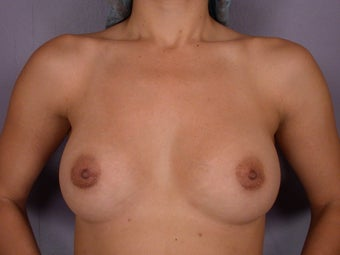 Breast Augmentation before 338717