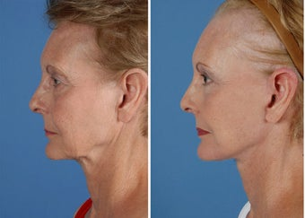 Facelift, browlift, upper and lower eyelids, laser before 253954