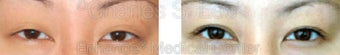 Blepharoplasty before 427702