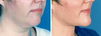 Chin Liposuction before 640708
